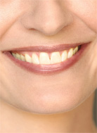 Headshot Retouching - Teeth Whitening (Before)